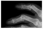 artritis door psoriasis